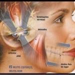 Fibromialgia2014-5